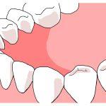 歯にひびが入ってしまったら?(原因編)