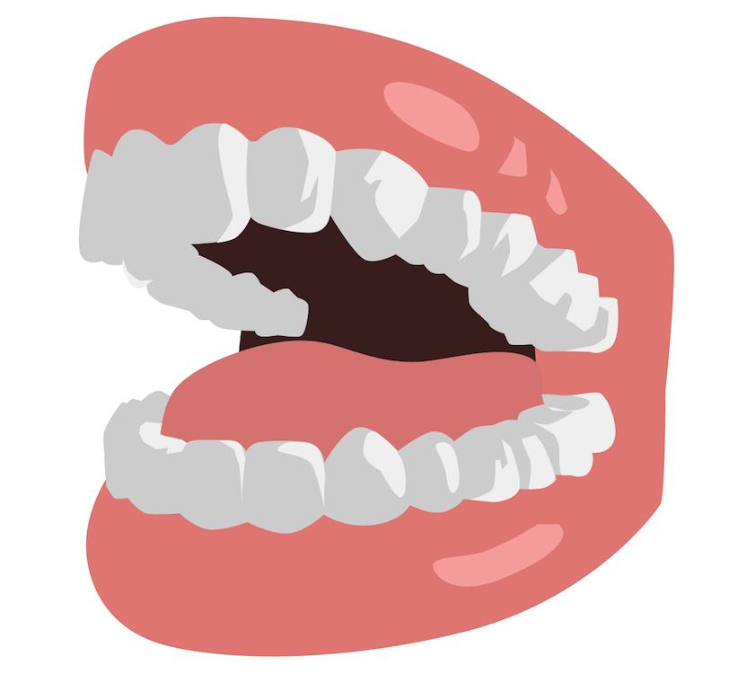 歯をずらした時にわかる2つの噛み合わせ、犬歯誘導