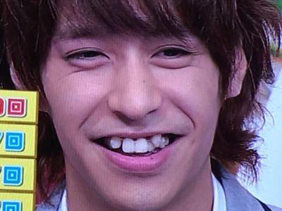 Hey!Say!JUMPの八乙女光さんから診る八重歯の矯正法