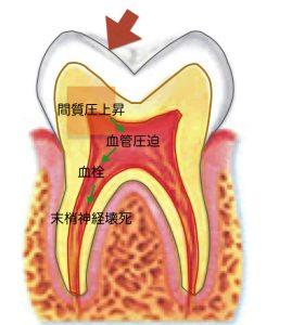 歯の構造.001