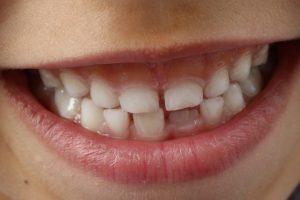 teeth-1743981_1920