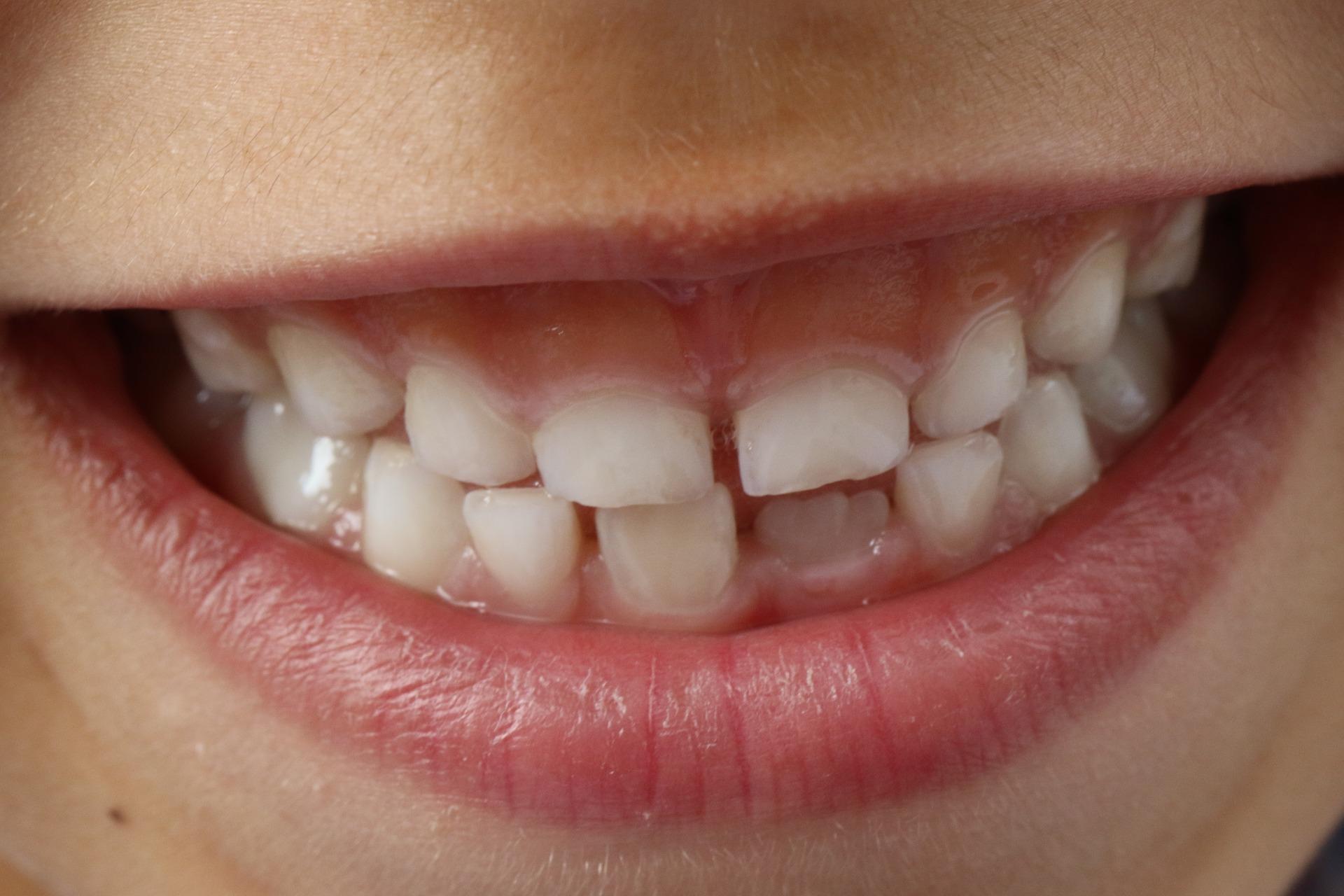 『子供の前歯に隙間ができた!!』は心配しないでください。