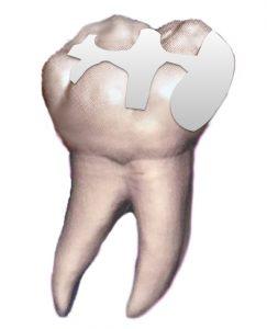 銀歯.001