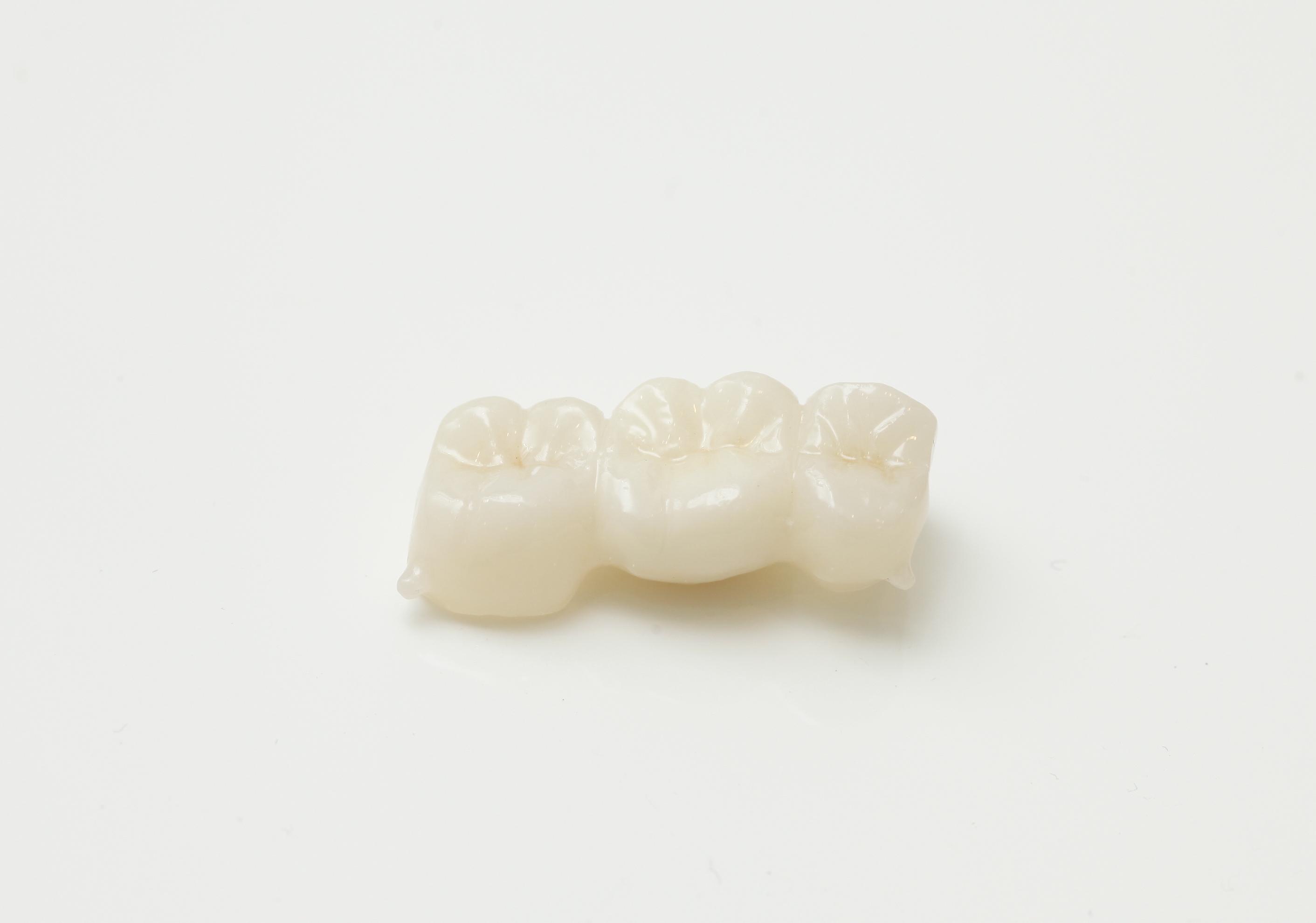 ジルコニアクラウンは対合の歯が削れる?削れない?に答えます。