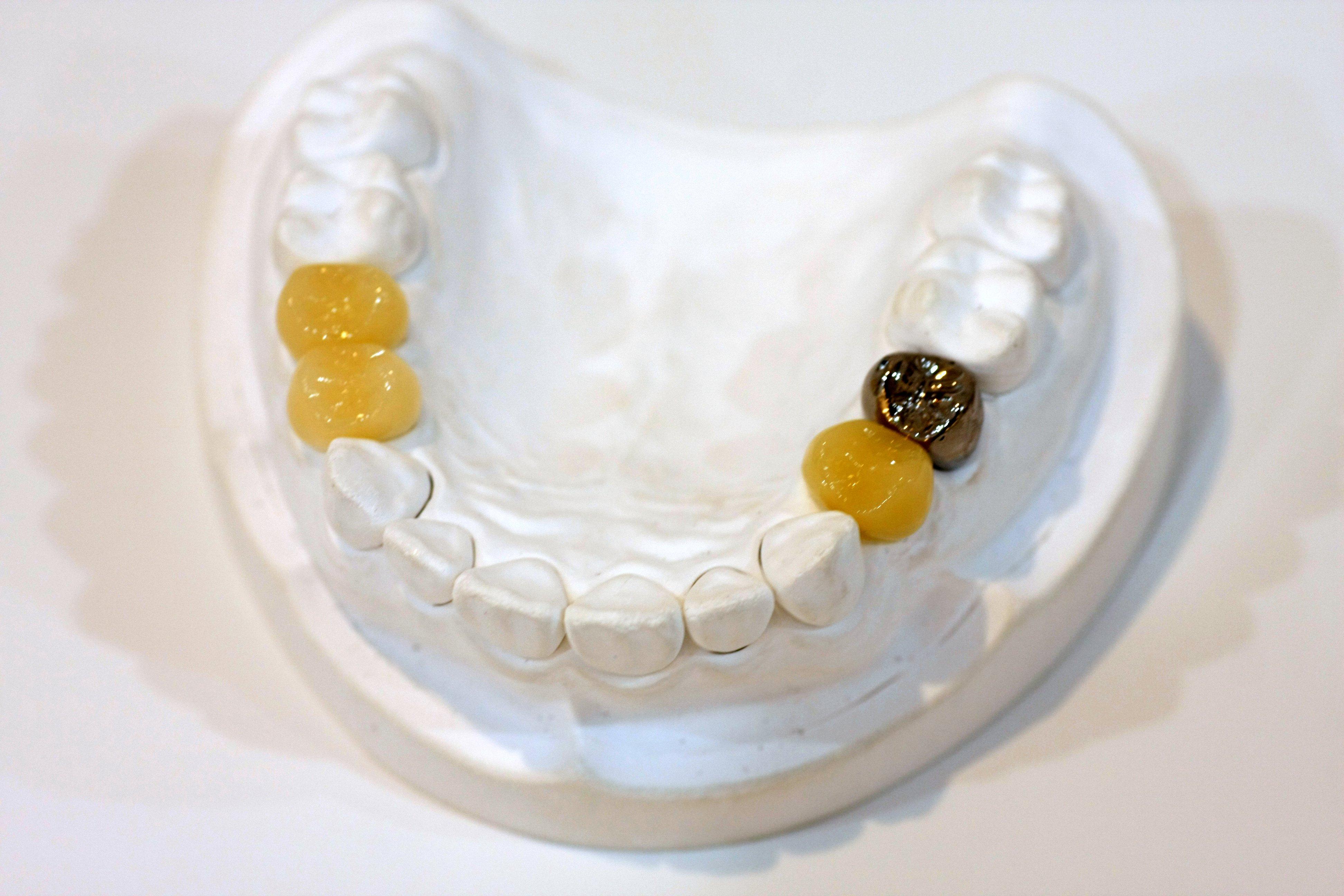 保険治療の白い歯キャドキャム冠(CAD/CAM)のメリットデメリットについて知ってほしいこと