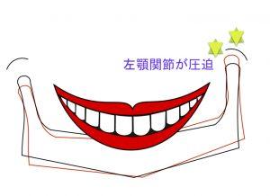 顎関節シフト.001