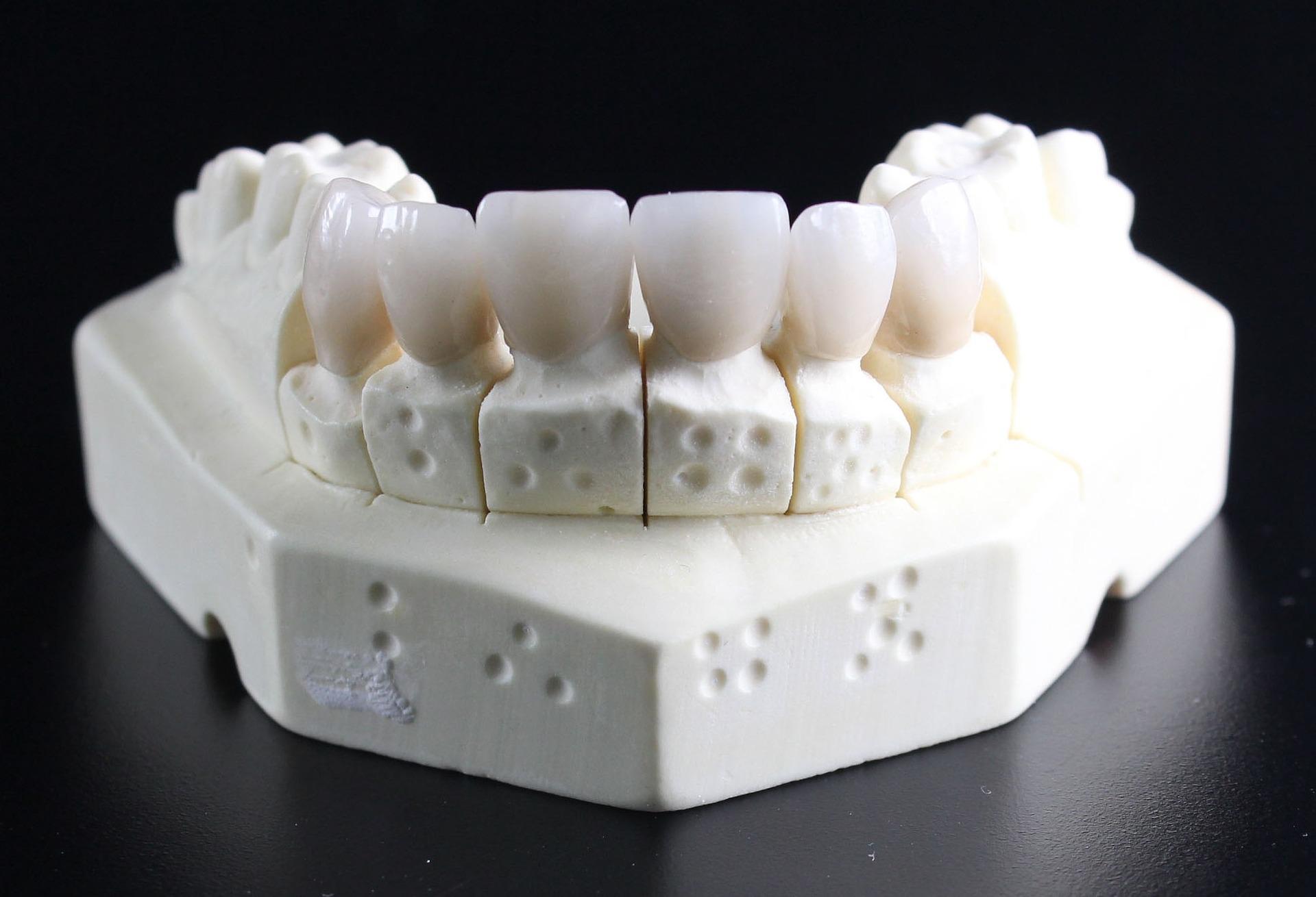 減り続ける歯科技工士。未来の歯科治療で起こる問題とは?