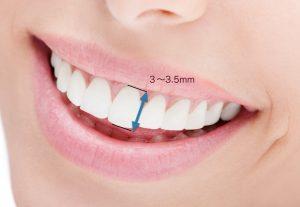 前歯.001
