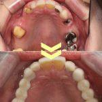 ひどい虫歯の症例 その2