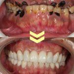 ひどい虫歯の症例 その1