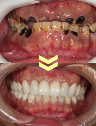 ひどい虫歯の治療症例その1