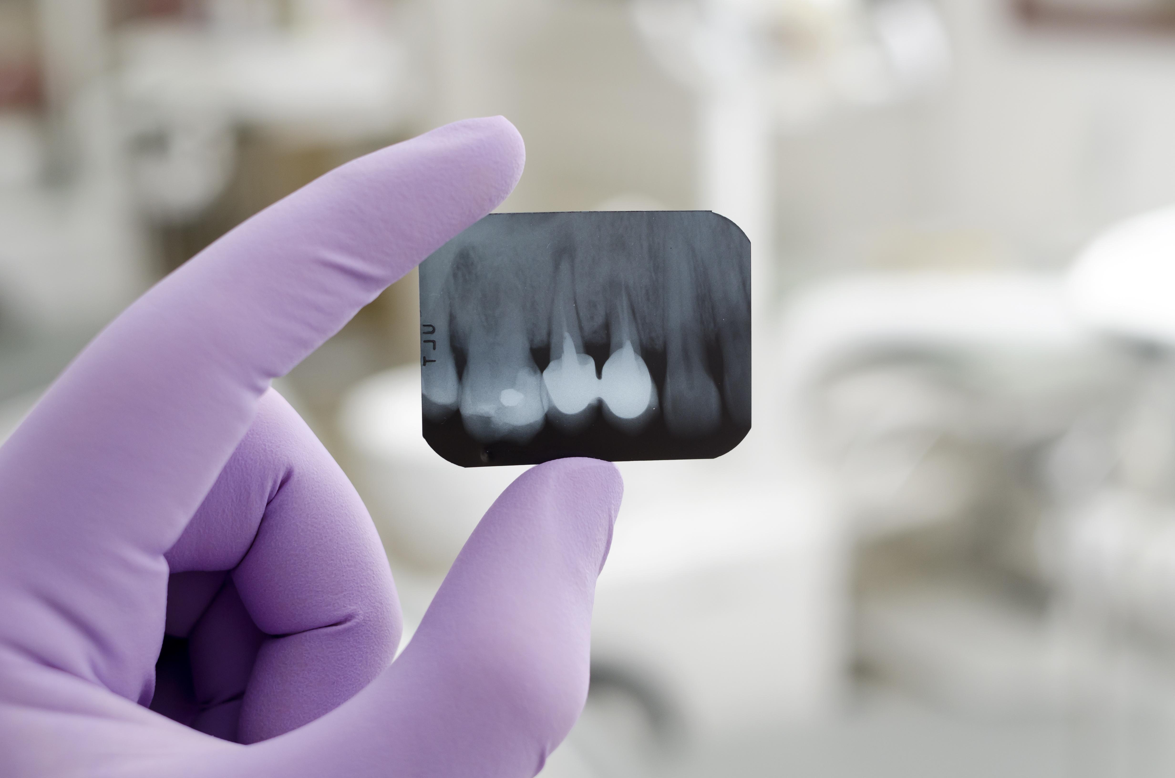 歯の根の治療のやり直しは成功率69%以下?知っておきたい再根管治療のこと
