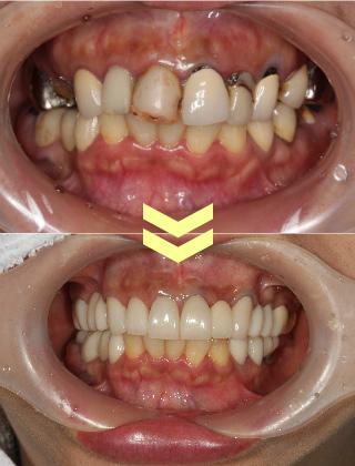 ひどい虫歯の症例その3