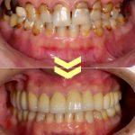ひどい虫歯の症例 その4