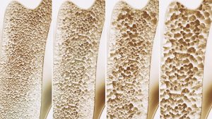Osteoporosis 4 stages - 3d rendering