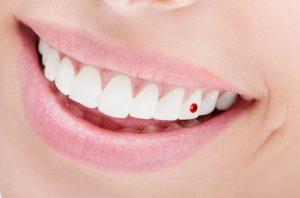 歯のピアス.001