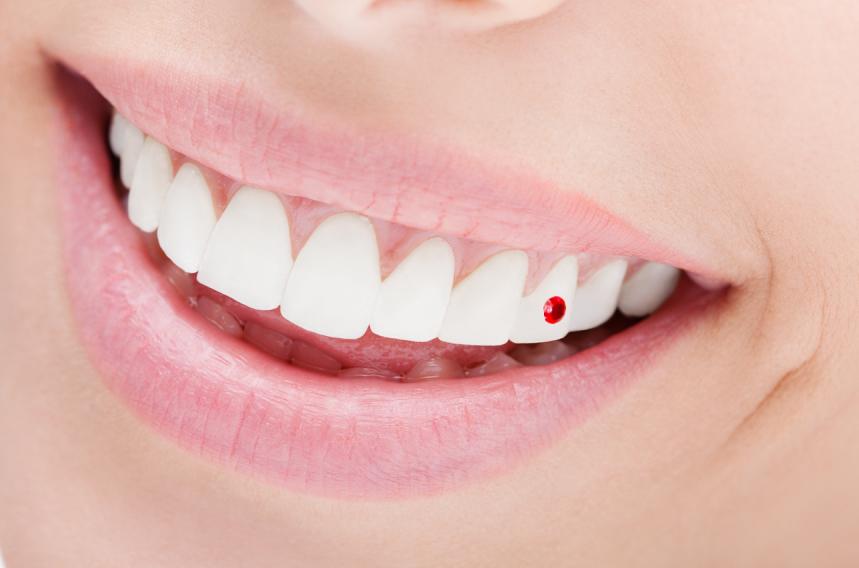 海外の芸能人がつけている歯のアクセサリーは何?