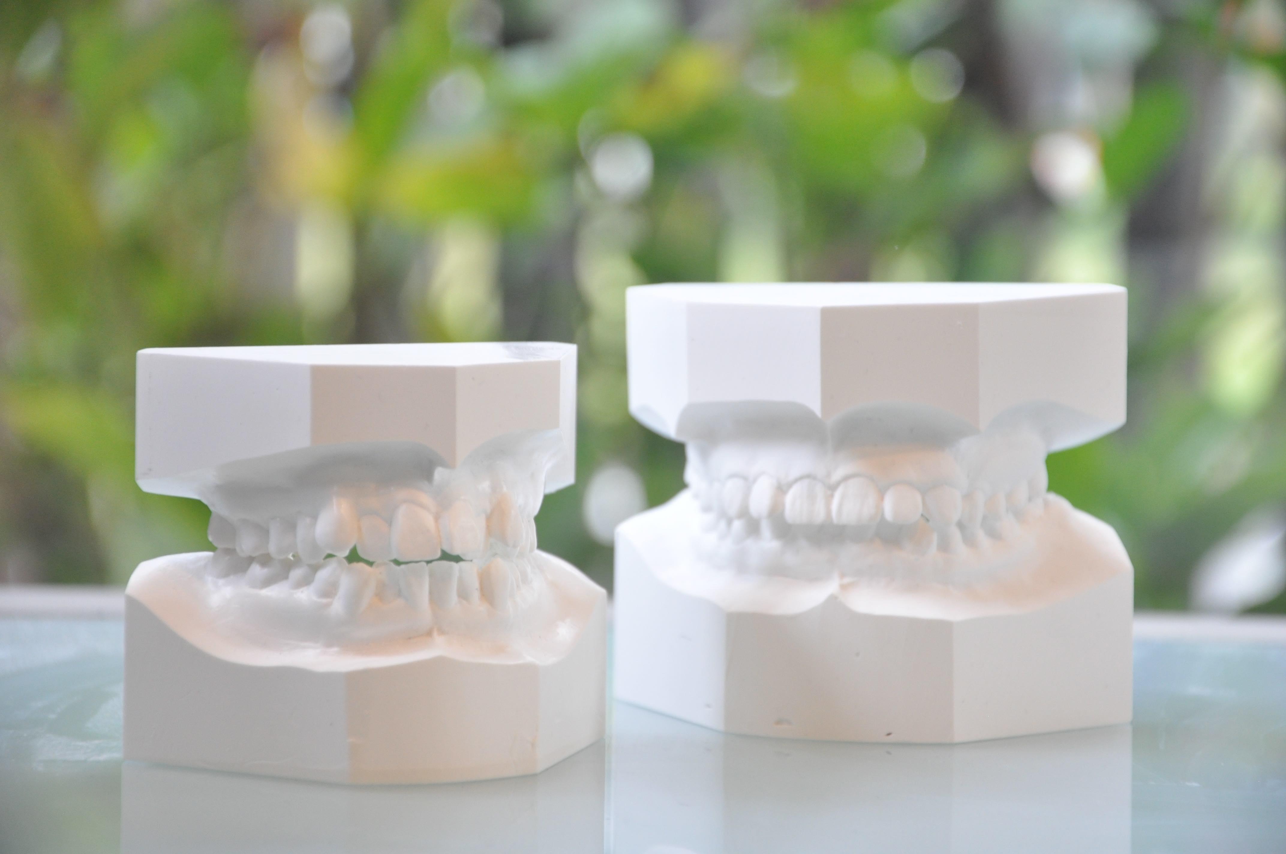 歯科平行模型