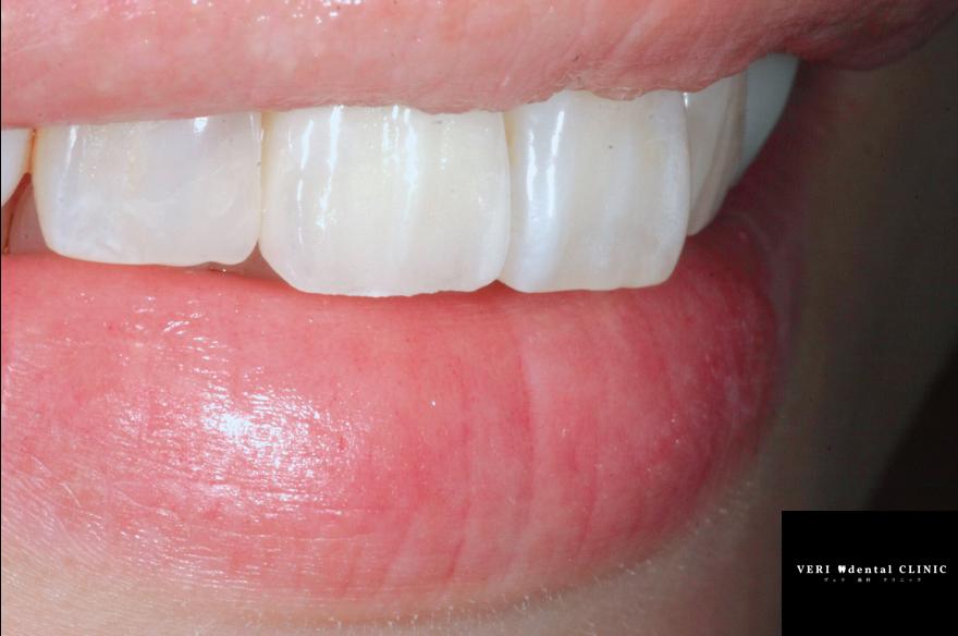 スマイルラインとリップから審美的な差し歯を作る?