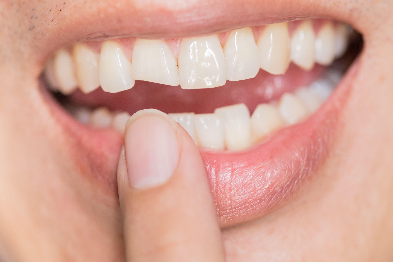 前歯をぶつけて歯が欠けたときはダイレクトボンディング法で治療する理由
