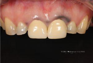 歯茎黒い.001