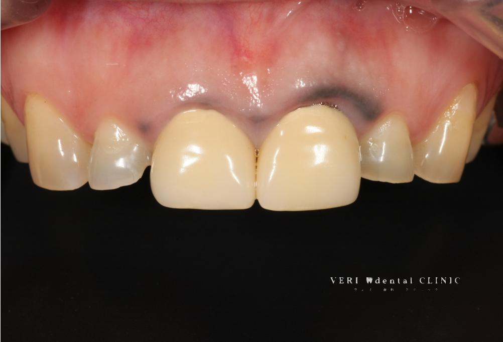 芸能人に限って歯茎が紫色や黒く目立つのはなぜ?歯茎の色が黒いわけ(原因編)