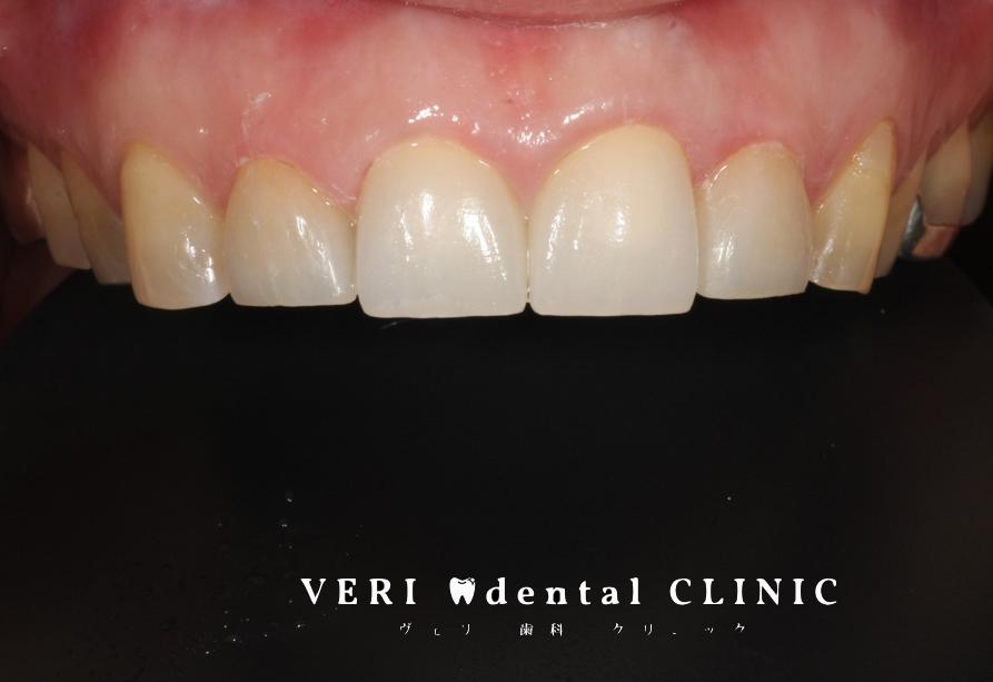 メタルタトゥーはどうやって治す?歯茎の黒ずみ治療編