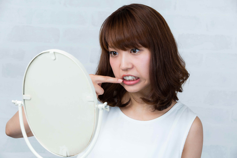 歯周病ではないのに歯に物が良く挟まるのはなぜ?食片圧入について