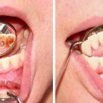 『歯石取りはなぜ一回でおわらないの?』と思っている方へ知っておきたい保険治療のこと