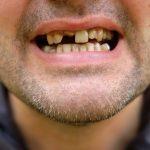 ひどい虫歯は噛み合わせも悪くしてしまう?