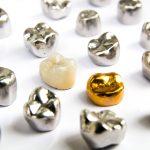歯科用金属高騰によって日本人に金属アレルギーが多くなる?